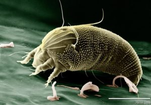 dust mite magnified